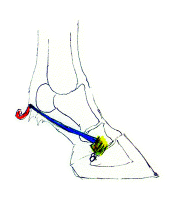 Back To The Basics Ligaments Holding It All Together