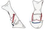 Figure 1 & 2