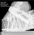 Radiograph-0908.jpg